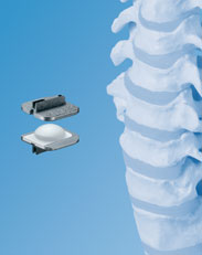 artificial disc surgery colorado, colorado spine surgeons, denver spine surgery, cervical artificial disc surgery, lumbar artificial disc surgery colorado